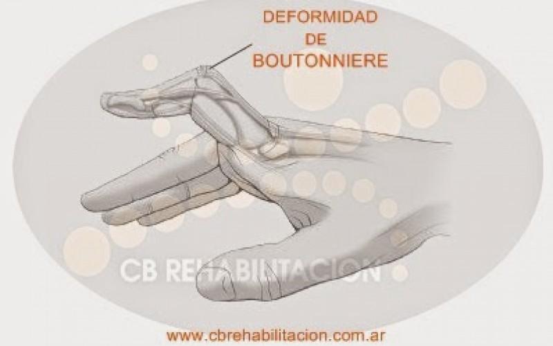 Manos: Deformidad de Botonniere (Botón)