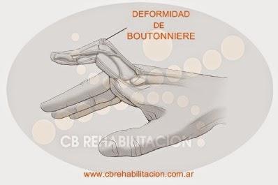 boutonnierre_deformity1367375302566